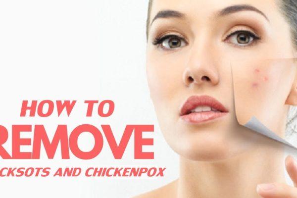 How to Remove ChickenPox