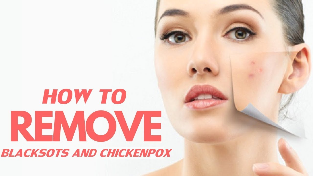 How to Remove ChickenPox