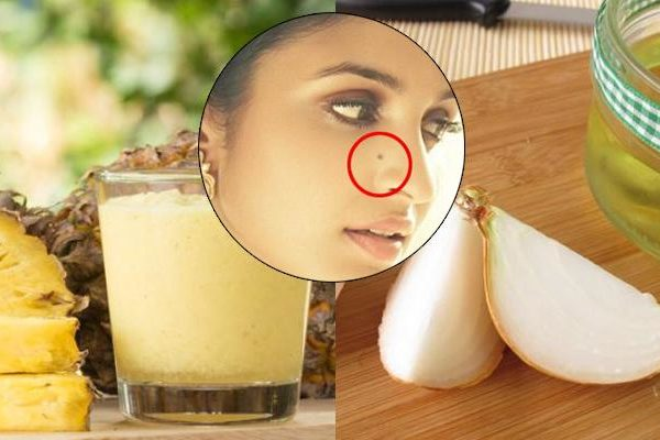 How to Remove Moles from Face Naturally