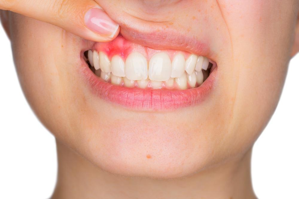 home remedies for gum problem